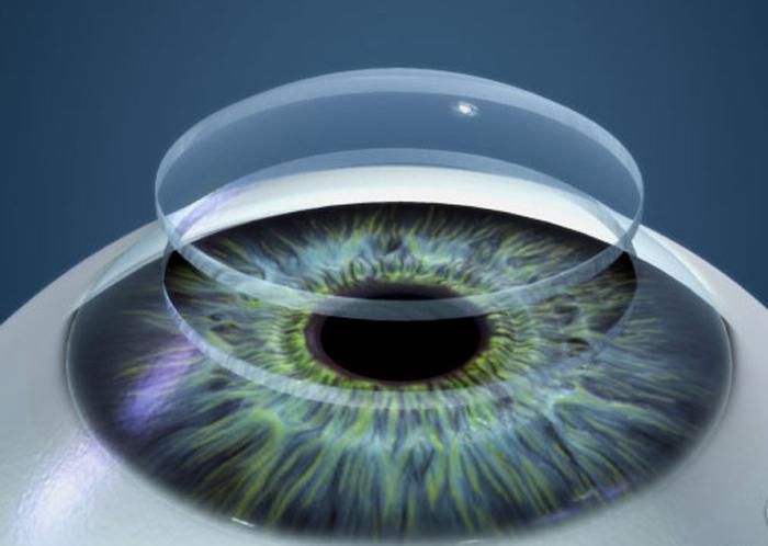 Кривизна контактных линз