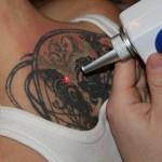 Сколько стоит свести татуировку?