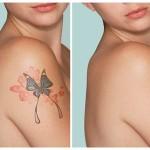 kak-udalit-tatuirovku-bezboleznenno-i-effektivno