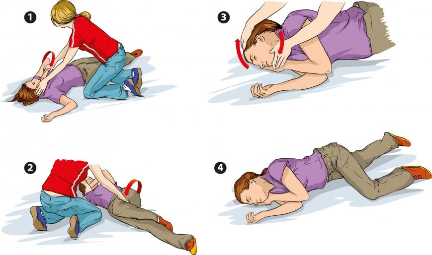 Первые действия при эпилептическом припадке