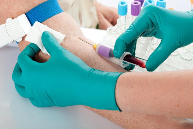 Можно ли пить воду когда сдаешь общий анализ крови