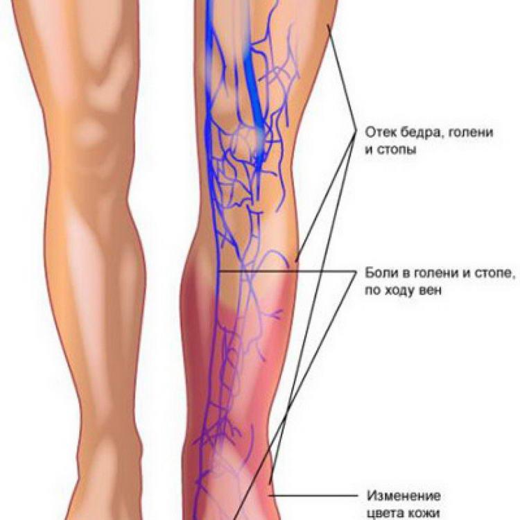 Паховая грыжа симптомы у мужчин и лечение