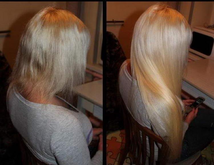 Сколько стоят волосы с жопы