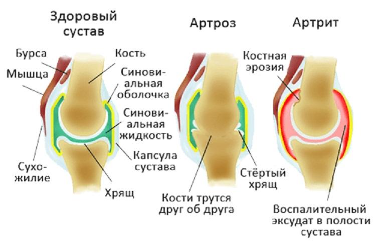 что такое артроз коленного сустава картинки