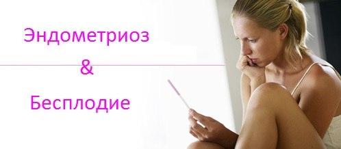 Что такое эндометриоз? - симптомы и лечение
